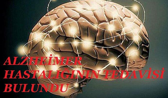 alzheimer hastaliginin tedavisi bulundu