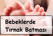 bebeklerde tırnak batması