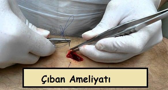çıban ameliyatı