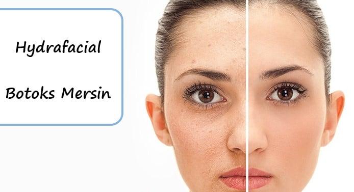 Hydrafacial & Botoks Mersin