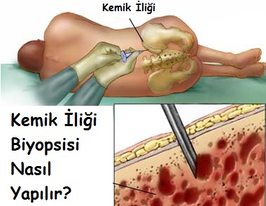 Kemik İliği Biyopsisi Nasıl Yapılır
