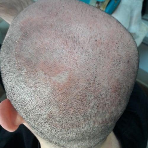 saç derisinde kızarıklık nedenleri