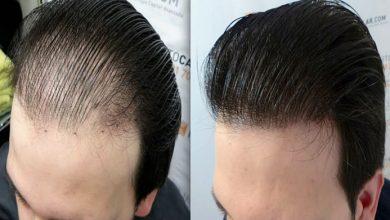 Saç Ekimi Yaptıranlar Sonrasında Nasıl Yıkama Yapmalı