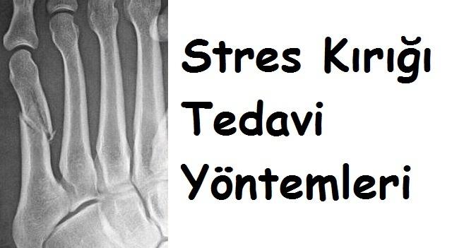 Stres Kırığı Tedavi Yöntemleri