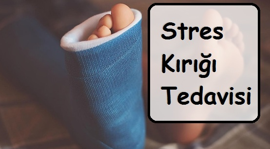 Stres Kırığı Tedavisi