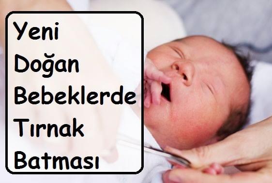 Yeni Doğan Bebeklerde Tırnak Batması